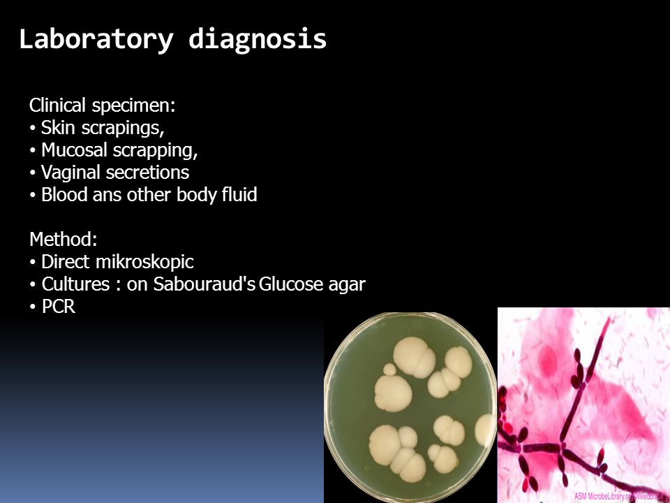 Laboratory diagnosis Clinical specimen: Skin scrapings,