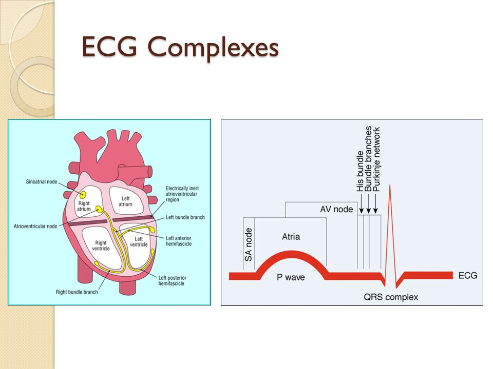 ECG Complexes