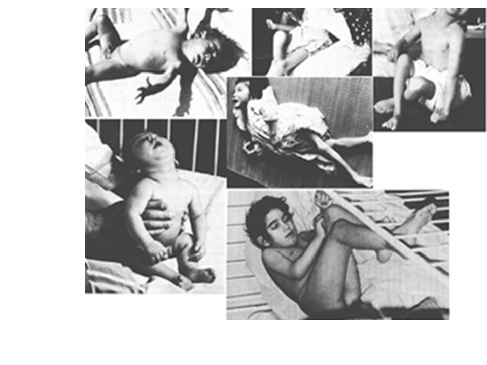 These are all children with congenital (fetal) Minamata Disease due to intrauterine methyl mercury poisoning (Harda 1986).