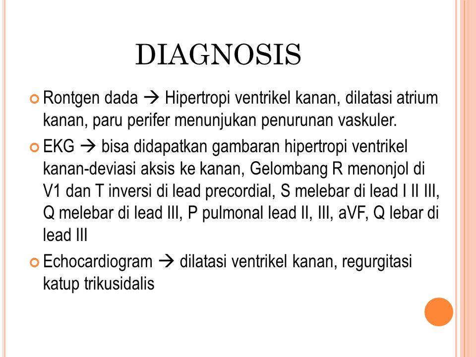 DIAGNOSIS Rontgen dada  Hipertropi ventrikel kanan, dilatasi atrium kanan, paru perifer menunjukan penurunan vaskuler.