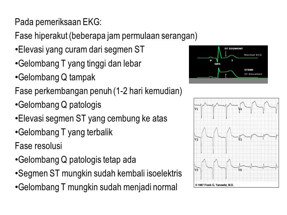 Pada pemeriksaan EKG: Fase hiperakut (beberapa jam permulaan serangan) Elevasi yang curam dari segmen ST.