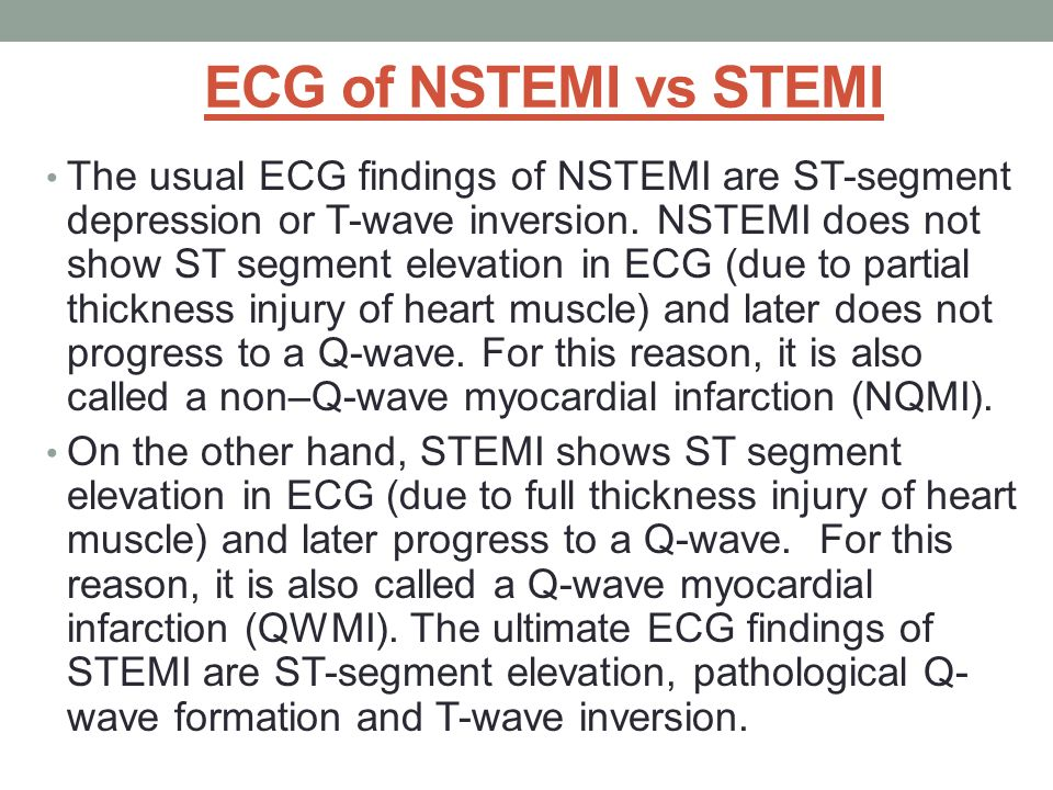 ECG of NSTEMI vs STEMI