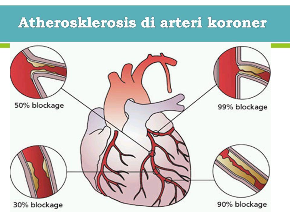 Atherosklerosis di arteri koroner