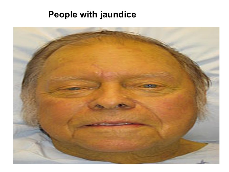People with jaundice