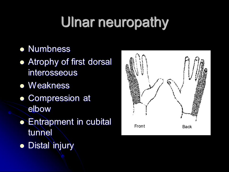 Ulnar neuropathy Numbness Atrophy of first dorsal interosseous