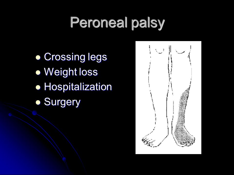 Peroneal palsy Crossing legs Weight loss Hospitalization Surgery