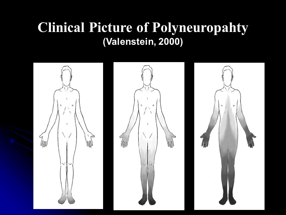 Clinical Picture of Polyneuropahty