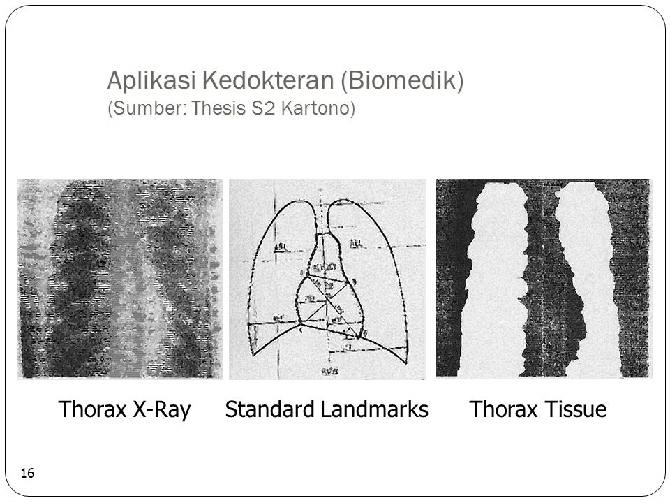 Aplikasi Kedokteran (Biomedik) (Sumber: Thesis S2 Kartono)