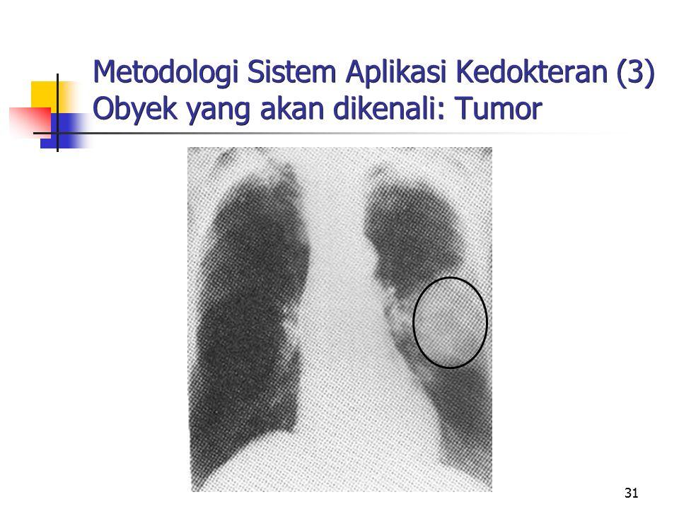 Metodologi Sistem Aplikasi Kedokteran (3) Obyek yang akan dikenali: Tumor