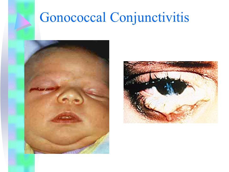Gonococcal Conjunctivitis