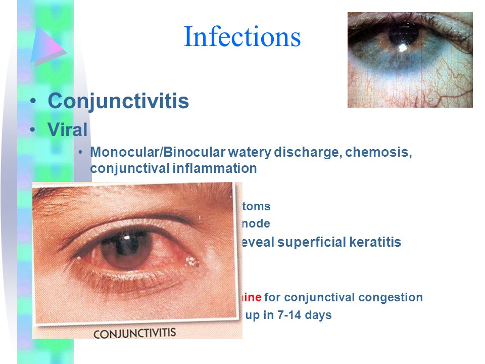 Infections Conjunctivitis Viral