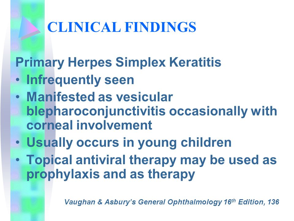 CLINICAL FINDINGS Primary Herpes Simplex Keratitis Infrequently seen