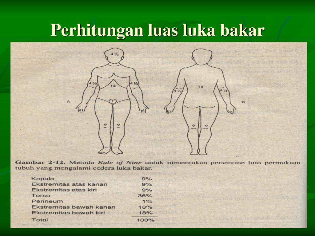 Klasifikasi Luka Bakar Ppt Download