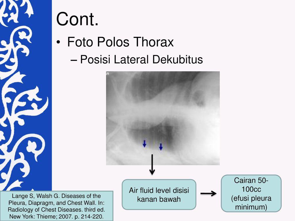 Efusi Pleura Bagian Radiologi Fakultas Kedokteran Laporan Kasus Ppt Download