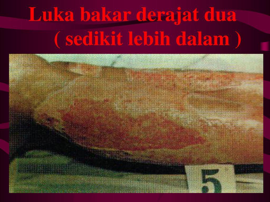 Luka Bakar Combustio Ppt Download