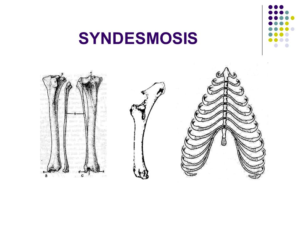 SYNDESMOSIS