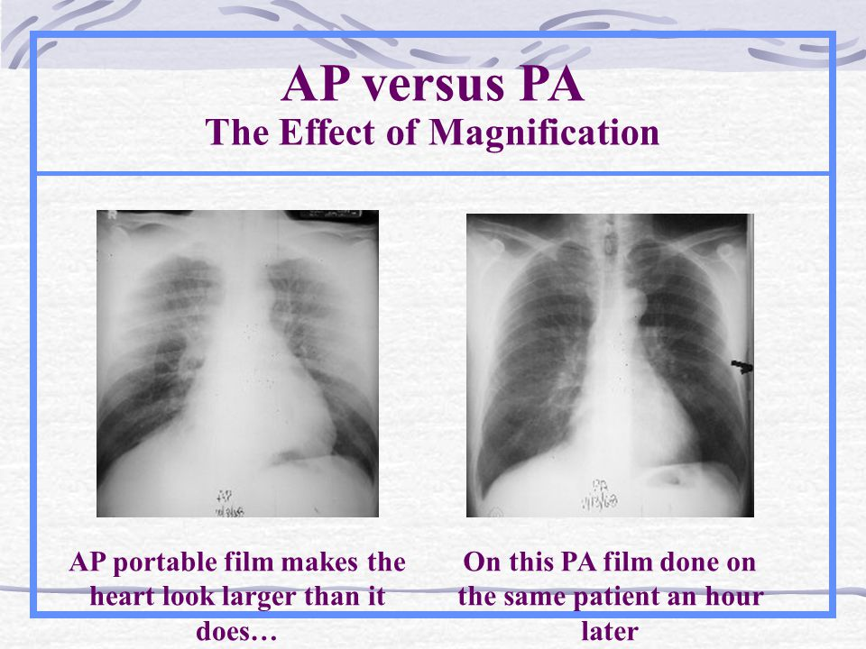 AP versus PA The Effect of Magnification