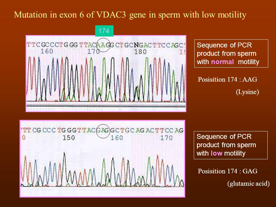 Mutation in exon 6 of VDAC3 gene in sperm with low motility