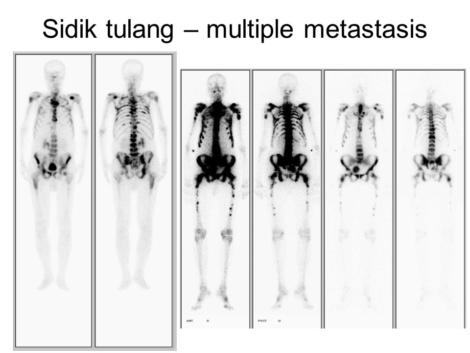 Sidik tulang – multiple metastasis