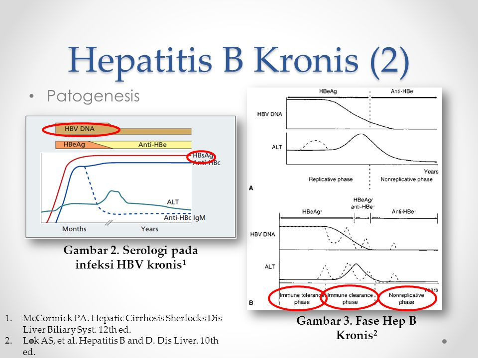 Hepatitis B Kronis (2) Patogenesis