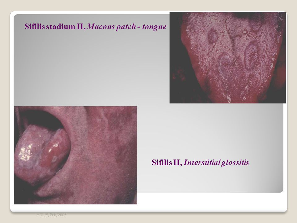 Sifilis stadium II, Mucous patch - tongue