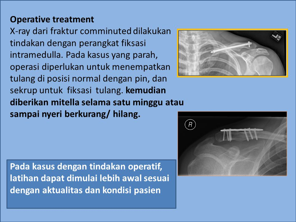 Operative treatment X-ray dari fraktur comminuted dilakukan