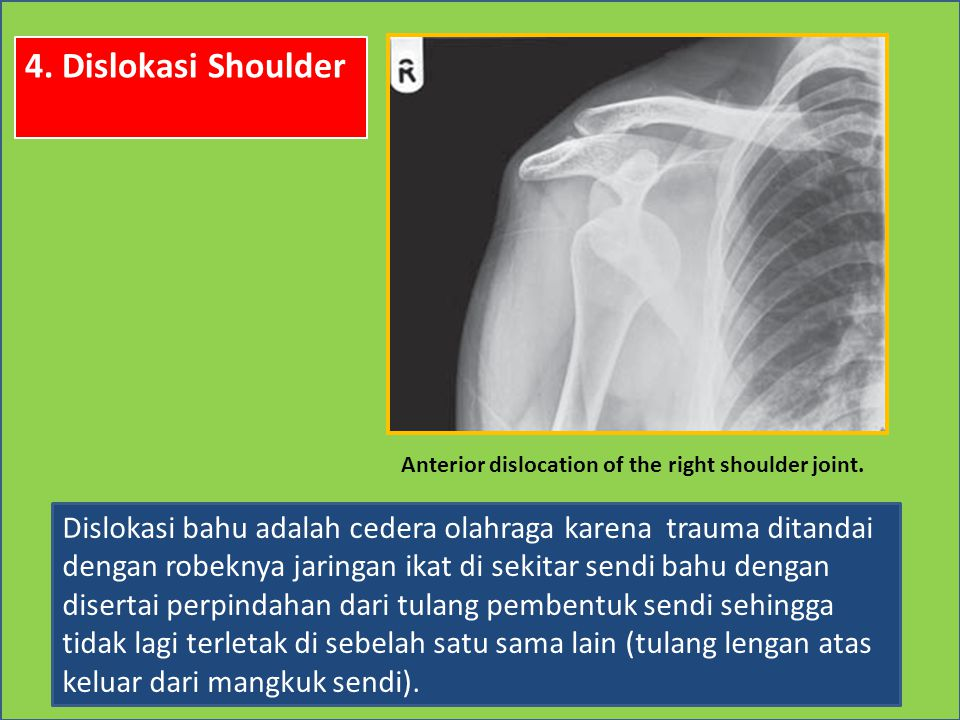 4. Dislokasi Shoulder Anterior dislocation of the right shoulder joint.